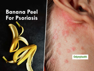 Illustration of Psoriasis Treatment Solutions To The Body?