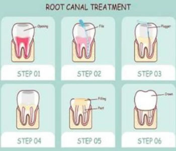 Illustration of Why After Treating Root Canals, My Teeth Still Hurt?