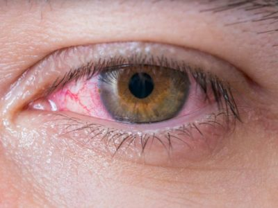 Illustration of Causes Of Thick Bloody Eyes?