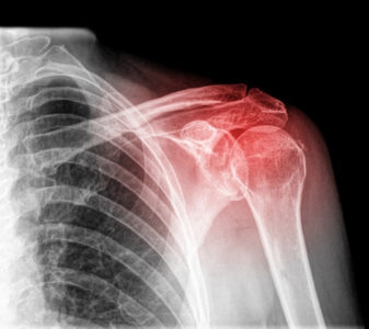 Illustration of Pain In The Shoulder And X-rays?
