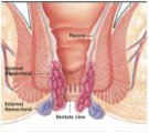 How To Deal With Leg Pain And Hemorrhoid Stage 4?