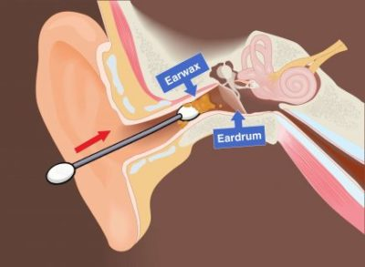 Illustration of Ear Pain After Cleaning Using A Cotton Bud?