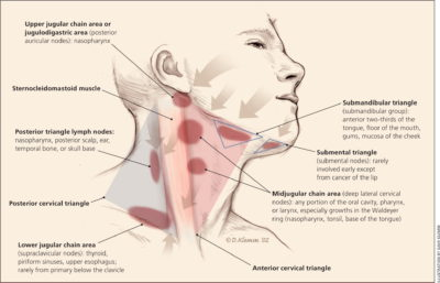 Illustration of The Upper Neck Swelling And Blood Pressure Are Never More Than 100/60?