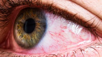 Illustration of Medication For Itching And Swelling In The Eyes?
