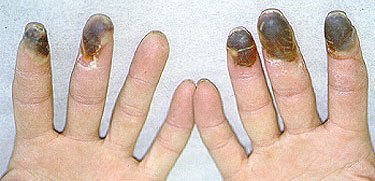 Illustration of Can Buerger's Disease Be Cured By Amputation?