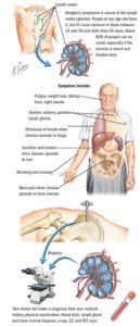 Illustration of How To Deal With Vomiting After Lymph Node Surgery?
