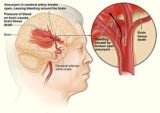 Does The Impact Of Brain Hemorrhage Last A Long Time?