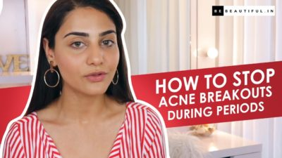 Illustration of Acne That Appears Before Menstruation?