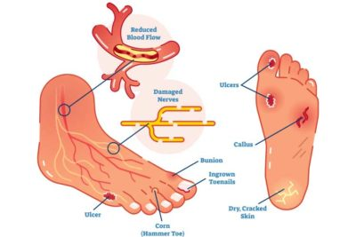 Illustration of How To Deal With Broken Ulcers In Diabetics?