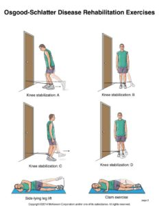 Illustration of Are People With Osgood Schlatters Disease Still Allowed To Exercise?