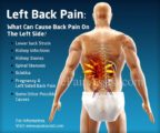 Causes Of Left Back Pain?