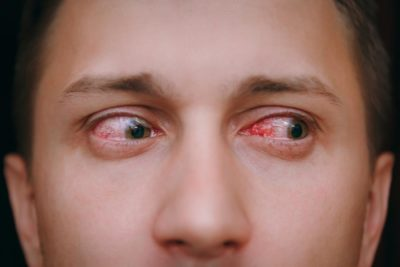 Illustration of Headaches Accompanied By Red Eyes And Swelling During Colds?