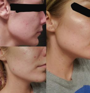 Illustration of Dull Facial Skin After Using Sunscreen?