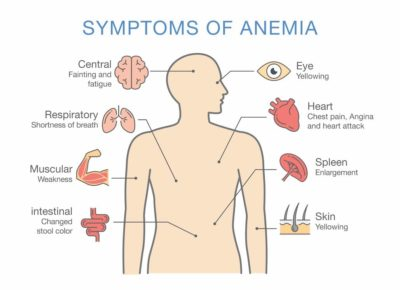 Illustration of Causes Weakness, Jaundice, Enlarged Liver, And Anemia?