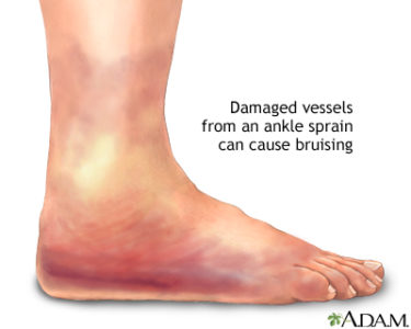 Illustration of Swelling And Bruising After Ankle Injury?