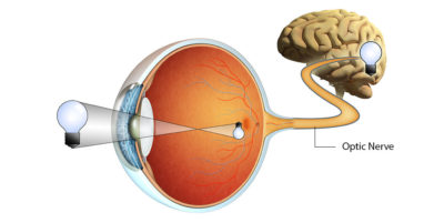 Illustration of Treatment Of Neurological Diseases That Are Already In The Eye?
