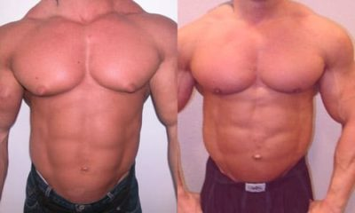 Illustration of How To Get Rid Of Steroids In The Body?