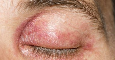 Illustration of What Medicine Is Suitable For Itchy, Red And Flaking Eyelids?