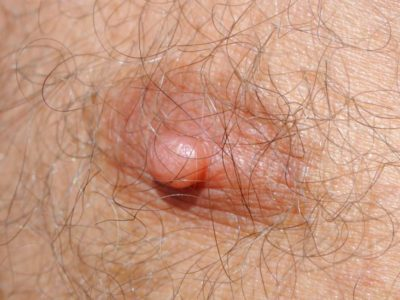 Illustration of How To Deal With Small, Dry Nipples And Peeling Skin?