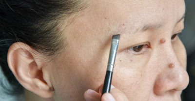 Illustration of Wounds On The Eyebrows Can Grow Hair Again?