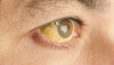 Illustration of Causes Of Eye Sclera Becoming Yellow And Reddish?