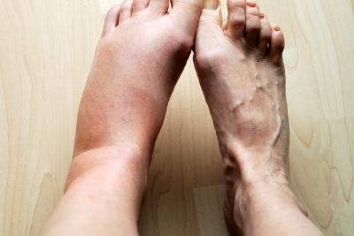 Illustration of Swollen Feet Due To Impact?