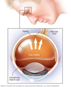 Illustration of Surgery For Patients With Retinal Detachment?