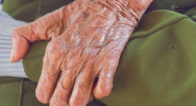 Illustration of Red Skin Is Thick And Numb, What Is Leprosy?