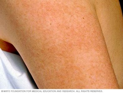 Illustration of What Are The Symptoms Of Keratosis Pilaris?
