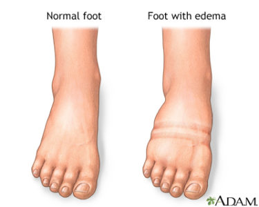 Illustration of Swollen Feet Accompanied By Post-operative Pain?