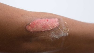 Illustration of How To Treat After Exposed To Burning Skin?
