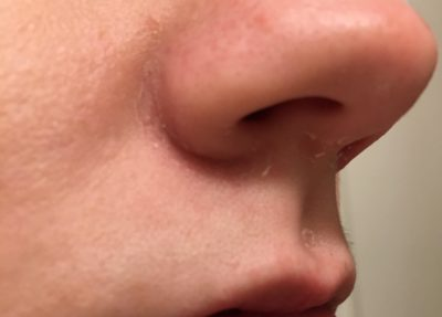 Illustration of The Skin Around The Nose Is Dry?
