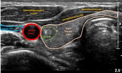 Illustration of Results Of Ultrasound Analysis Of The Thyroid Gland?
