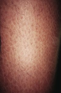 Illustration of Itchy Body After Taking TB Gland Medicine?