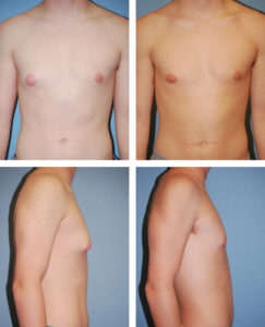 Illustration of What Is Meant By The Window Period Of Postoperative Gynecomastia HIV Infection?