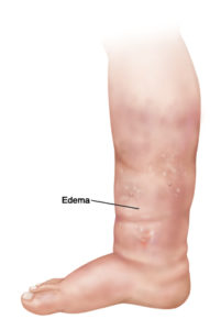 Illustration of Causes Swelling In Both Thighs?