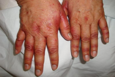 Illustration of Black Spots Appear On The Hands Accompanied By Fever Whether HIV?