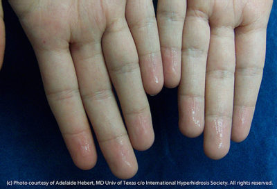 Illustration of The Cause Of Sweaty Hands Is Just One Side Only?