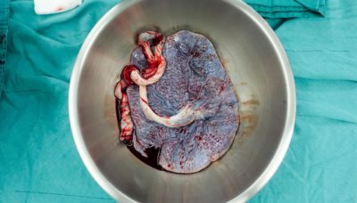 Illustration of The Remaining Tissue Is Still In The Uterus After A Miscarriage?