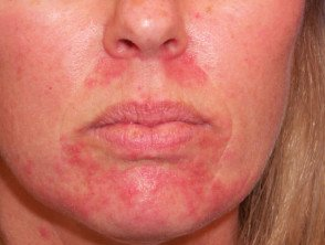 Illustration of What Are The Characteristics And Treatment Of Perioral Dermatitis?