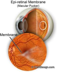 Illustration of There Is A Membrane In The Eye, Is It A Cataract?