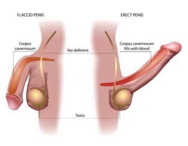 Illustration of How To Deal With Erect Penis Is Not Natural?