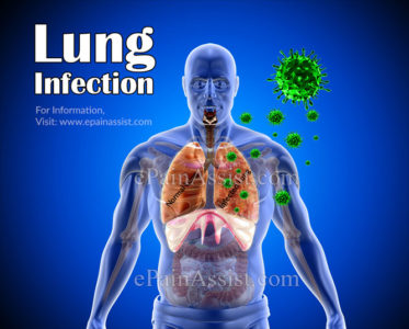 Illustration of Causes Of Lung Infection?
