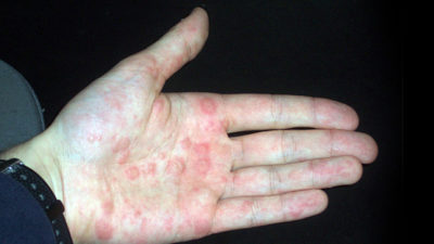 Illustration of Red Bumps As Big As Pimples On The Palm And Instep Of The Foot?