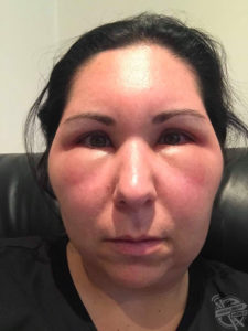 Illustration of Swelling On The Face Due To Burns?