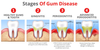 Illustration of Treatment For Gum Infections?