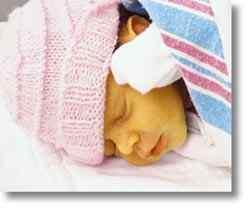 Illustration of Fever Is Accompanied By Yellow In Newborns?