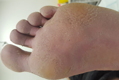 Illustration of How To Deal With Pitted Keratolysis Skin Disorders?