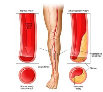 Illustration of The Cause Of Pain In The Calf And Thigh That Can Not Walk?