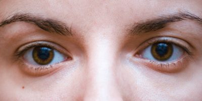 Illustration of Causes And Ways To Deal With Tired Eyes?